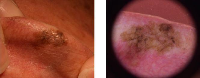 Eastern Skin Cancer Clinic Melanoma
